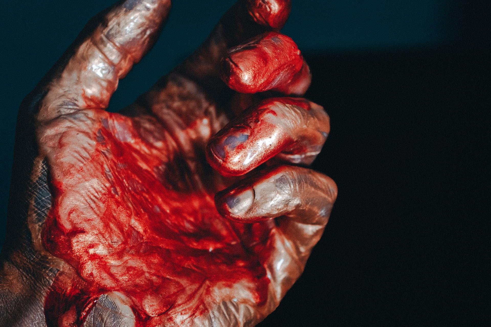 घरेलू विवाद में पत्नी की हत्या कर पति फरार